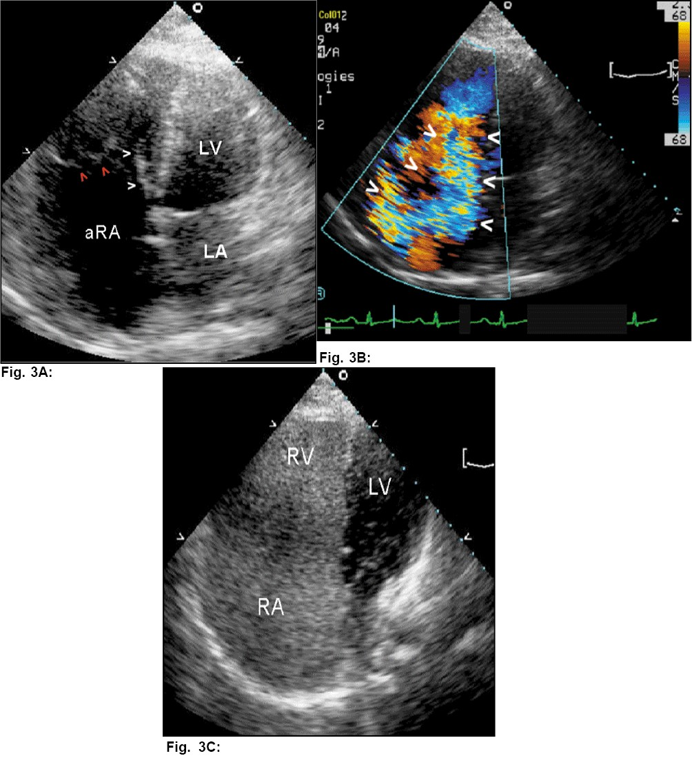 Figure 3A: 2DE in the apical 4-chamber view shows a large atrialized component of the right ventricle with an elongated (sail-like), mobile anterior tricuspid valve leaflet (TV) (red arrows). The septal leaflet (white arrows) appears plastered to the septum and displaced towards the right ventricular apex. The septal TV is inserted 3.2 cm lower than the anterior mitral leaflet. There is gross lack of systolic coaptation of the TV leaflets causing severe tricuspid regurgitation (white arrows, Fig 3B). There was no ASD by color Doppler and cardiac catheterization.