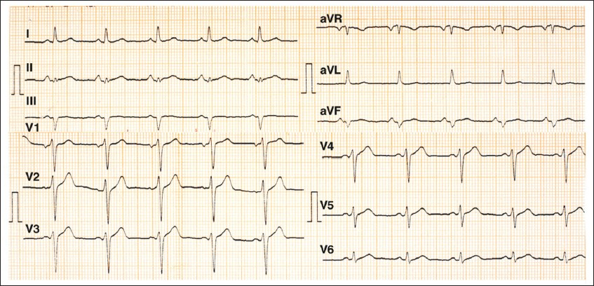 Figure 3 :ECG recorded on hospital day 4th.