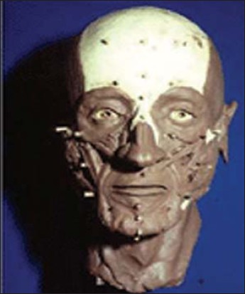Figure 4 : The remaining muscles of the face are modelled onto the skull one-by-one.