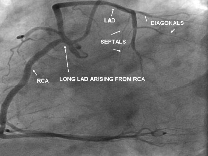 Figure 3 :LAO view shows normal RCA. A long LAD is seen arising from the proximal RCA. Septals and diagonals are arising from the long LAD
