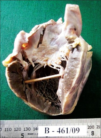 Figure 1 :Gross appearance of heart showing dilated left atrium with MacCallum plaque and vegetations