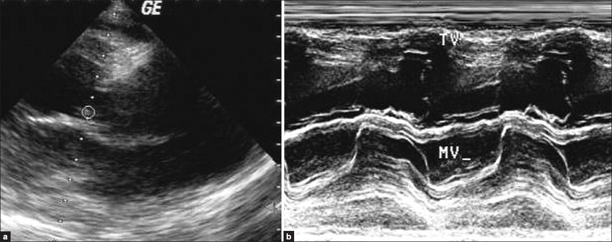 Figure 2: M mode echocardiography of mitral valve showing thickened mitral leaflet with restricted mobility
