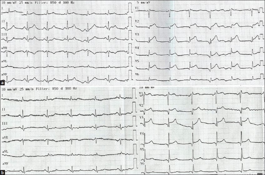 Figure 1: Twelve-lead electrocardiography samples of patient obtained at admission (a) and 2 days later (b)