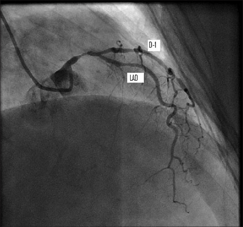 Figure 1: Left coronary angiogram showing stenotic left anterior descending coronary  artery with first diagonal.