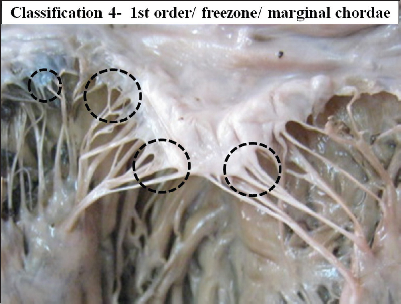 Morphological Study of Chordae Tendinae in Human Cadaveric Hearts ...