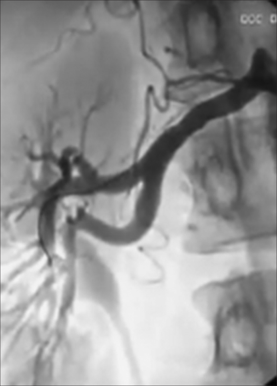Figure 3: Final enjection of right renal artery with no residual stenosis