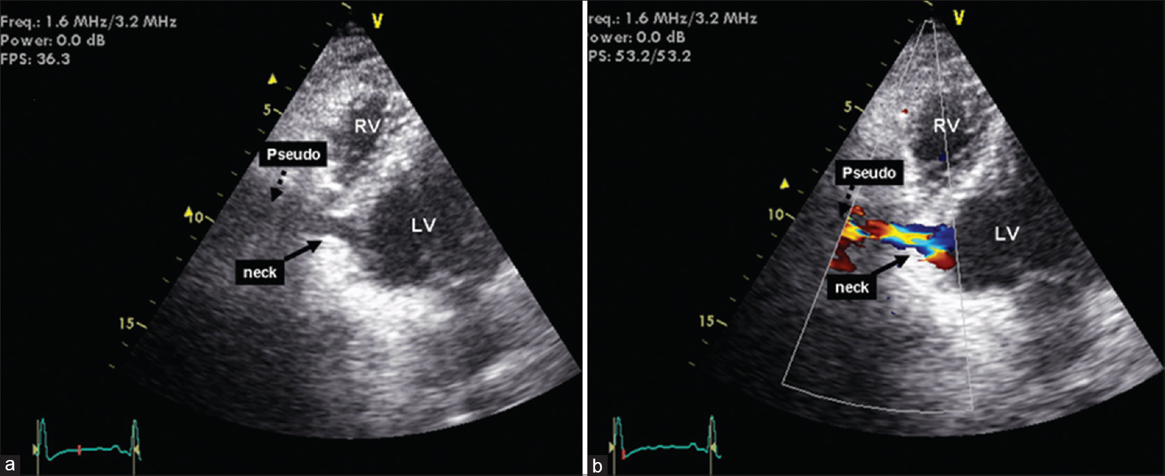 Figure 3: (a) Inferior angulation of the transducer from the 4 chamber view showed a long neck of a pseudoaneurysm connecting the inferior aneurysm to the cystic structure with (b) color Doppler confirming blood flow within this structure. LV: Left ventricle, RV: Right ventricle, Pseudo: Pseudoaneurysm
