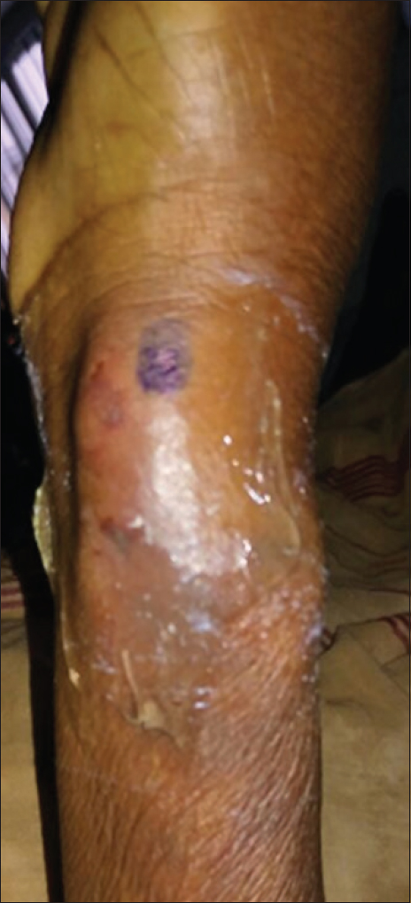 Figure 1: Large haematoma with ecchymosis