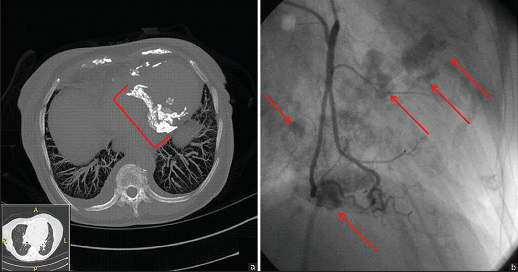 [Figure 1]: (a) Thin-slice computed tomography scan, bone window, displaying exuberant pericardial calcification (bracket). (b) Angiography of the right coronary artery confirms extensive irregular calcium deposits along the pericardium (arrows)