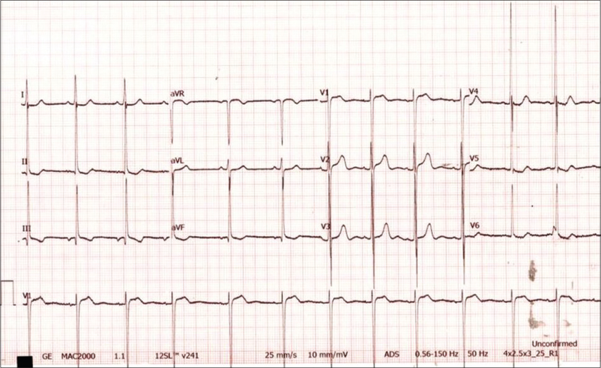 Figure 1: Electrocardiogram showing left ventricular hypertrophy