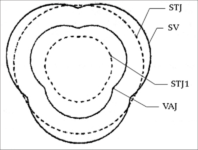 Figure 2: Schematic presentation of four levels of aortic root from transverse section. STJ1: 1 cm above the sinotubular junction, STJ: Sinotubular junction, SV: Sinus of Valsalva, VAJ: Ventriculoarterial junction