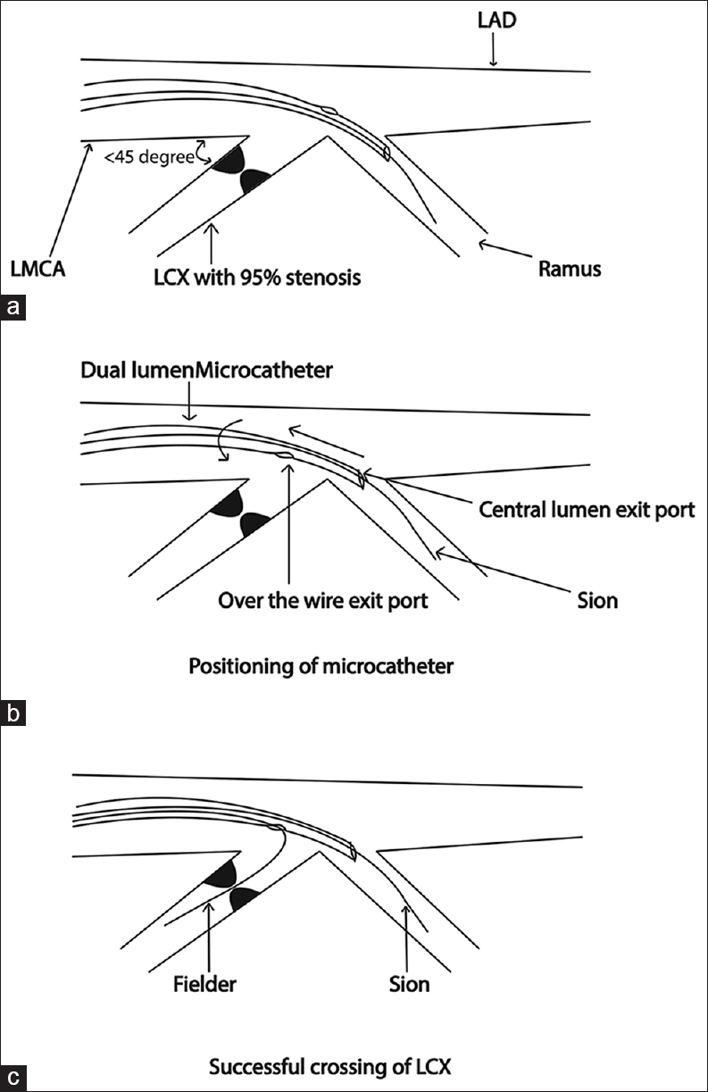 "Figure 2: Schematic illustration of steps for negotiating ""acute take off"" left circumflex artery using dual-lumen microcatheter. (a) The dual lumen microcatheter through its central monorail port advanced over the hydrophilic guidewire Sion (Asahi Intecc) in the ramus. (b) Positioning of microcatheter in such a way that the over the wire exit port faces towards LCX ostium. (c) Successful crossing of LCX lesion with hydrophilic polymer coated coronary guide wire Fielder (Asahi Intecc) through over the wire lumen after giving proximal >90° ;curve to its tip. (LCX: Left circumflex artery)"