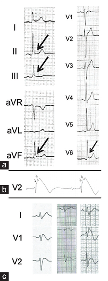 Figure 3: High-risk electrocardiogram features seen in some Brugada syndrome patients. (a) Early repolarization pattern in inferior and/or lateral leads.<sup>[45]</sup> (b) Fragmented QRS – arrows.<sup>[46]</sup> (c) Example of significant S wave in three patients with Brugada syndrome<sup>[49]</sup>