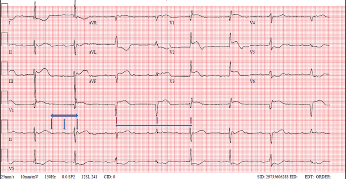 Figure 2: Third-degree heart block, blue arrows: P-P red arrows: R-R