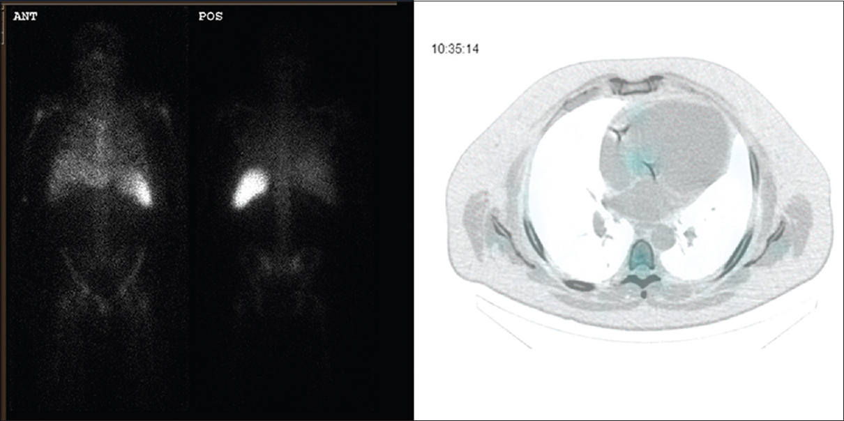 Figure 2: White blood cell single-photon emission computerized tomography of the lower chest and abdomen. Left: No abnormal focus of uptake on planar acquisitions. Right: Single-photon emission computerized tomography/computerized tomography of the lower chest and abdomen demonstrates a focus of low-to-moderate grade uptake at the root of the aorta